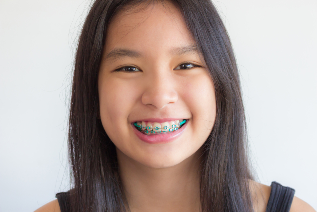 girl with braces orthodontics middleborough ma