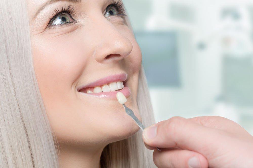 woman with dental veneers middleborough ma